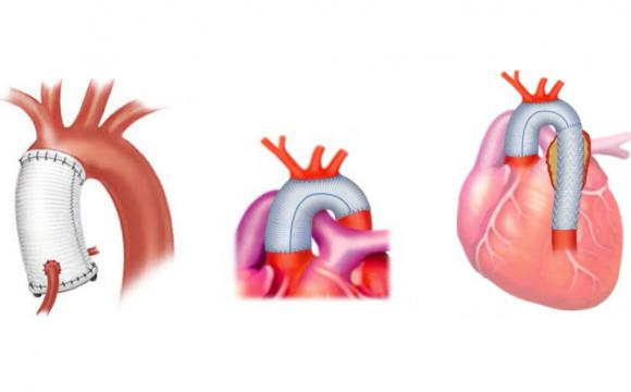 Kirurgjia e Aortës
