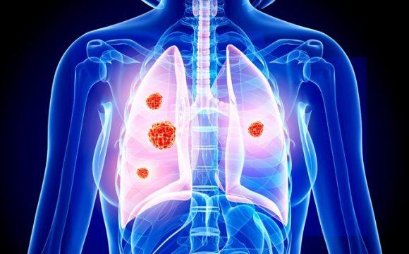 Kanceri i Mushkerive